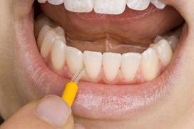 tannkjøttsykdommer_bilde1
